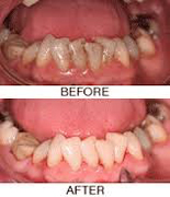 Healthy Gums Weybridge